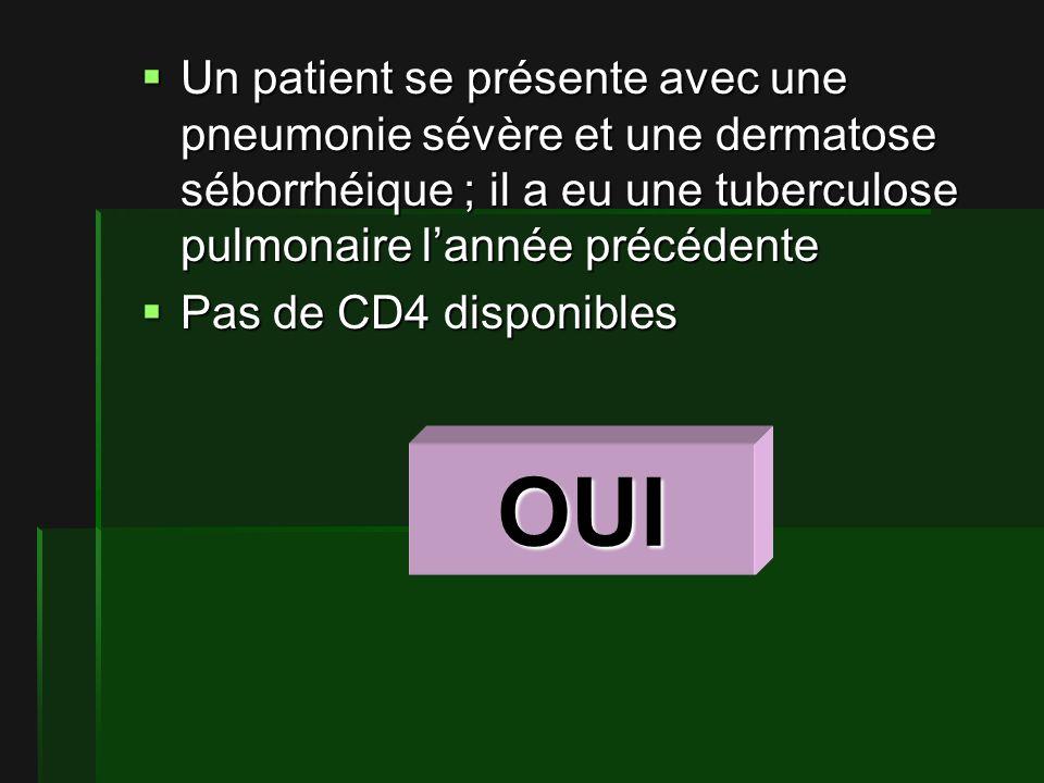 Un patient se présente avec une pneumonie sévère et une dermatose séborrhéique ; il a eu une tuberculose pulmonaire lannée précédente Un patient se présente avec une pneumonie sévère et une dermatose séborrhéique ; il a eu une tuberculose pulmonaire lannée précédente Pas de CD4 disponibles Pas de CD4 disponibles OUI