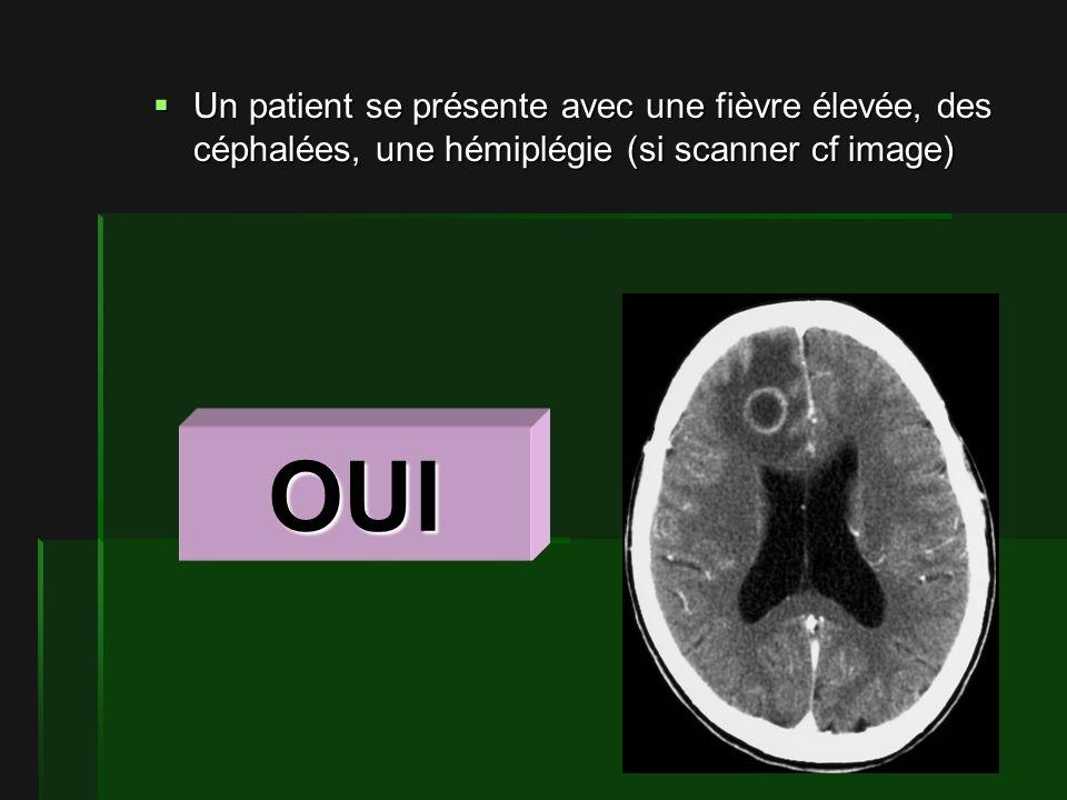 Un patient se présente avec une fièvre élevée, des céphalées, une hémiplégie (si scanner cf image) Un patient se présente avec une fièvre élevée, des céphalées, une hémiplégie (si scanner cf image) OUI