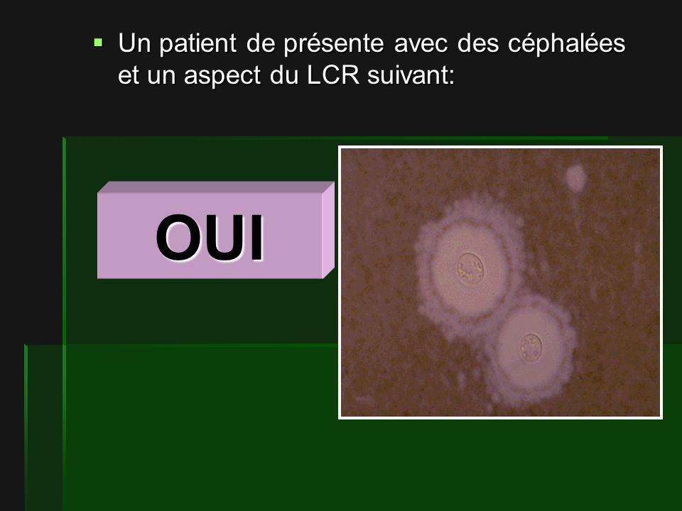 Un patient de présente avec des céphalées et un aspect du LCR suivant: Un patient de présente avec des céphalées et un aspect du LCR suivant: OUI