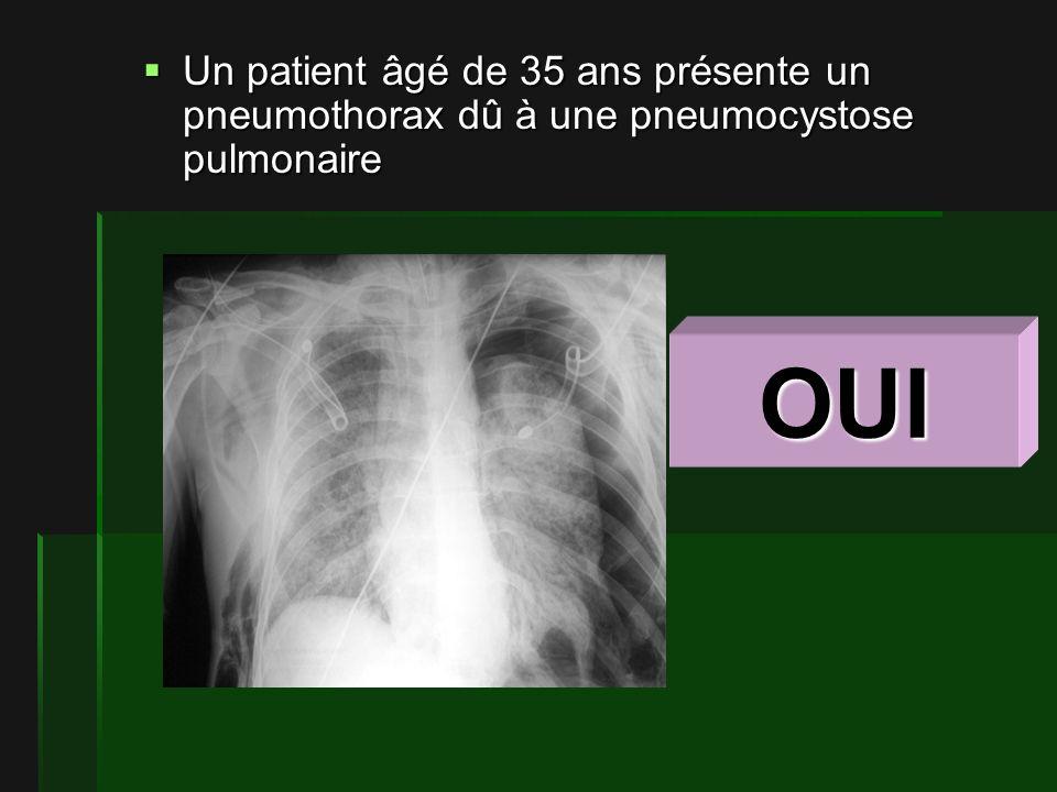 Un patient âgé de 35 ans présente un pneumothorax dû à une pneumocystose pulmonaire Un patient âgé de 35 ans présente un pneumothorax dû à une pneumocystose pulmonaire OUI