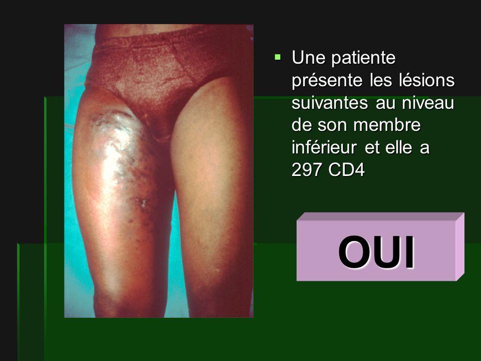 Une patiente présente les lésions suivantes au niveau de son membre inférieur et elle a 297 CD4 Une patiente présente les lésions suivantes au niveau de son membre inférieur et elle a 297 CD4 OUI