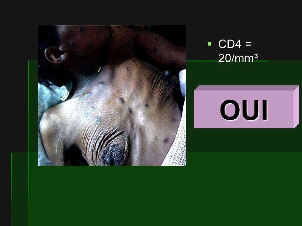 CD4 = 20/mm³ CD4 = 20/mm³ OUI
