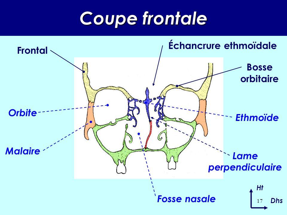 16 Vue postérieure Ht Dhs Crête frontale Granulations de Pacchioni Gouttière du sinus longitudinal supérieur Fosse frontale Bosse orbitaire Échancrure ethmoïdale Épine nasale Trou borgne Apophyse orbitaire externe