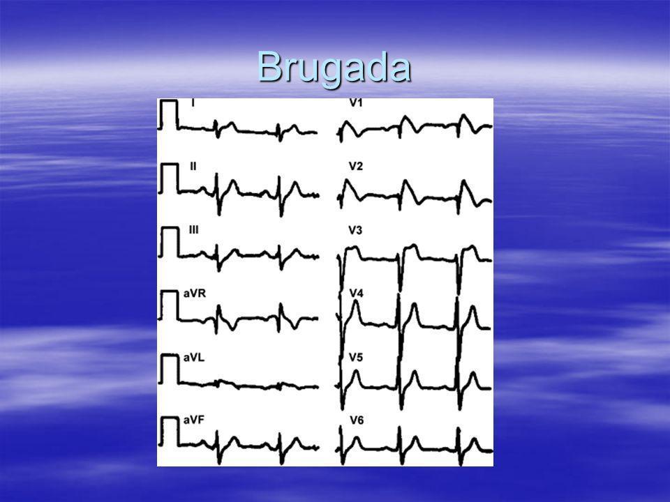 Brugada