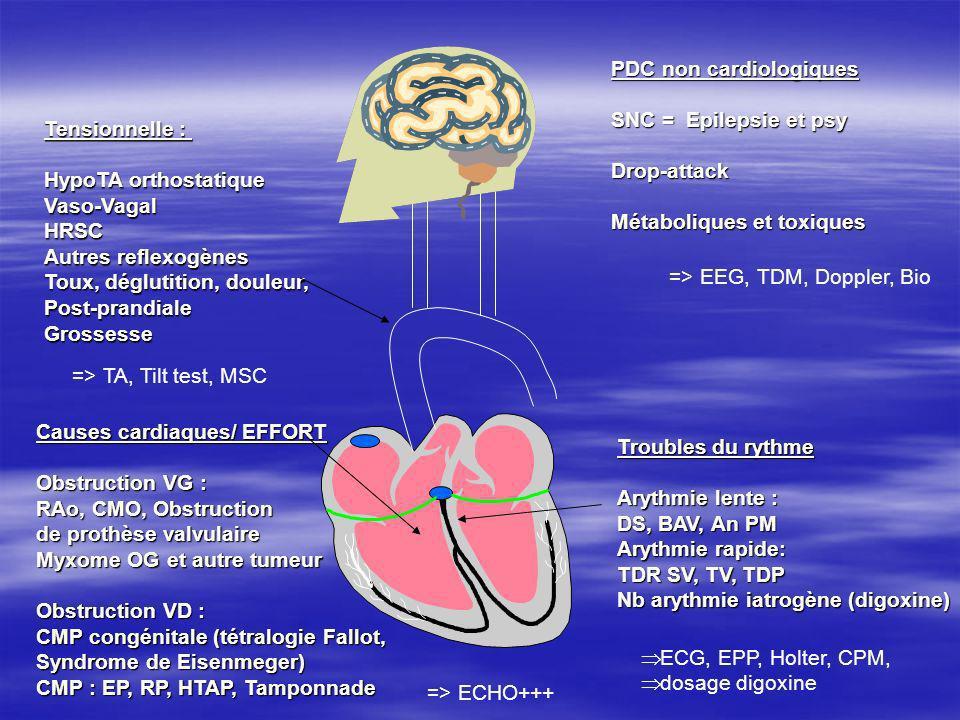 Causes cardiaques/ EFFORT Obstruction VG : RAo, CMO, Obstruction de prothèse valvulaire Myxome OG et autre tumeur Obstruction VD : CMP congénitale (té