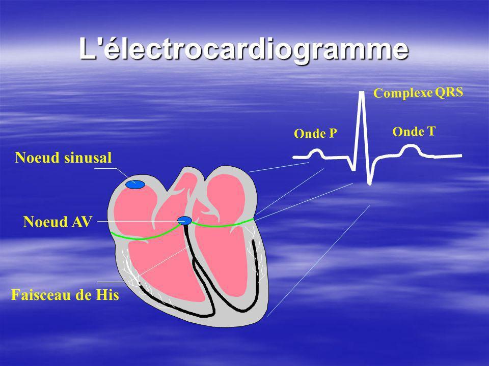 L'électrocardiogramme Noeud sinusal Faisceau de His Noeud AV Onde P Complexe QRS Onde T