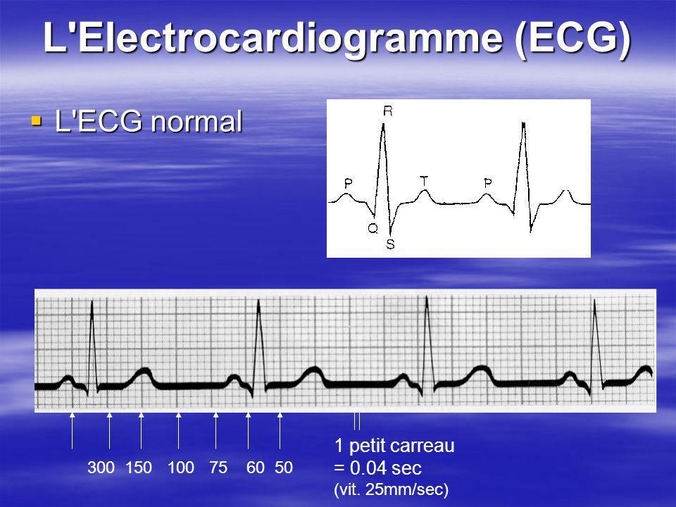 L'Electrocardiogramme (ECG) L'ECG normal L'ECG normal 300 150 100 75 60 50 1 petit carreau = 0.04 sec (vit. 25mm/sec)