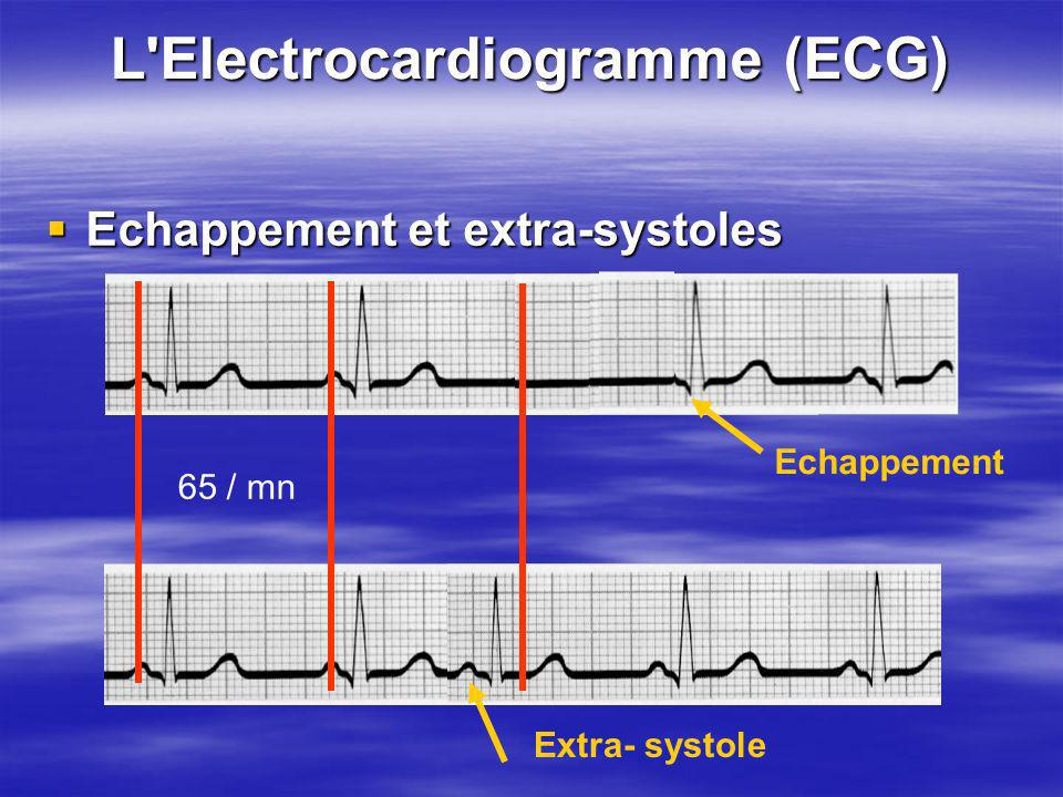 L'Electrocardiogramme (ECG) Echappement et extra-systoles Echappement et extra-systoles Echappement Extra- systole 65 / mn