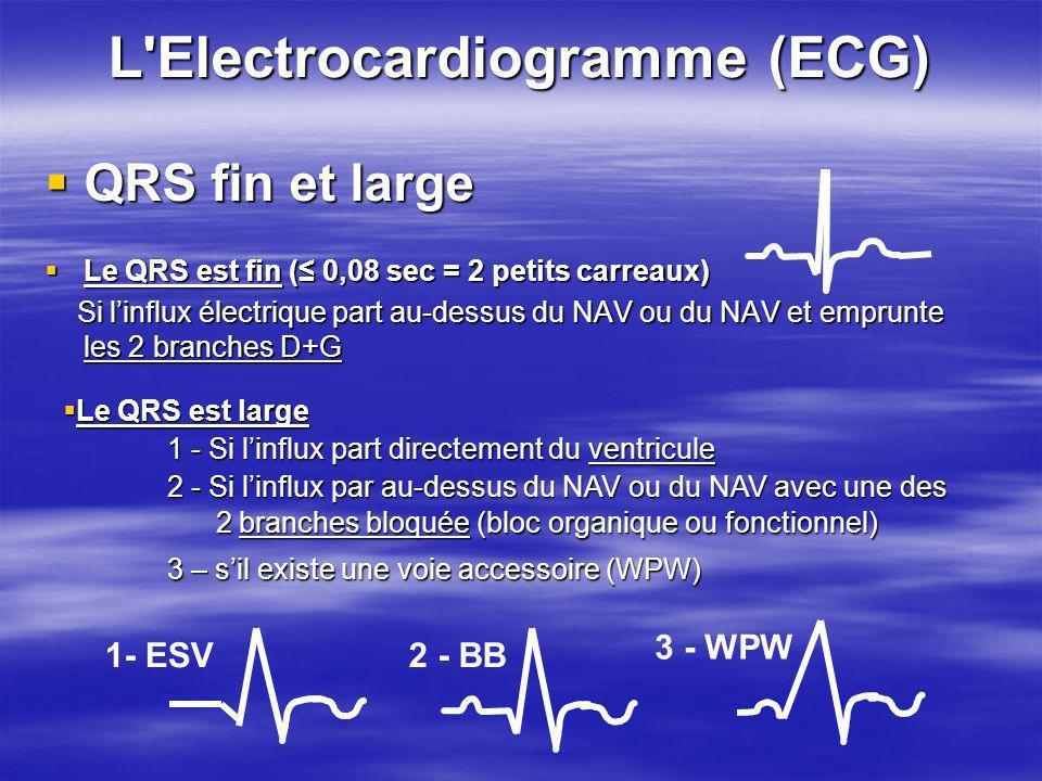 L'Electrocardiogramme (ECG) QRS fin et large QRS fin et large Le QRS est fin ( 0,08 sec = 2 petits carreaux) Le QRS est fin ( 0,08 sec = 2 petits carr