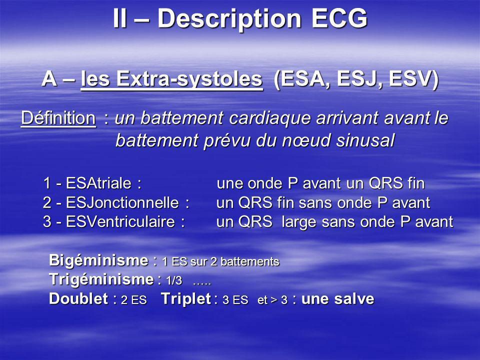 II – Description ECG A – les Extra-systoles (ESA, ESJ, ESV) Définition : un battement cardiaque arrivant avant le battement prévu du nœud sinusal batt