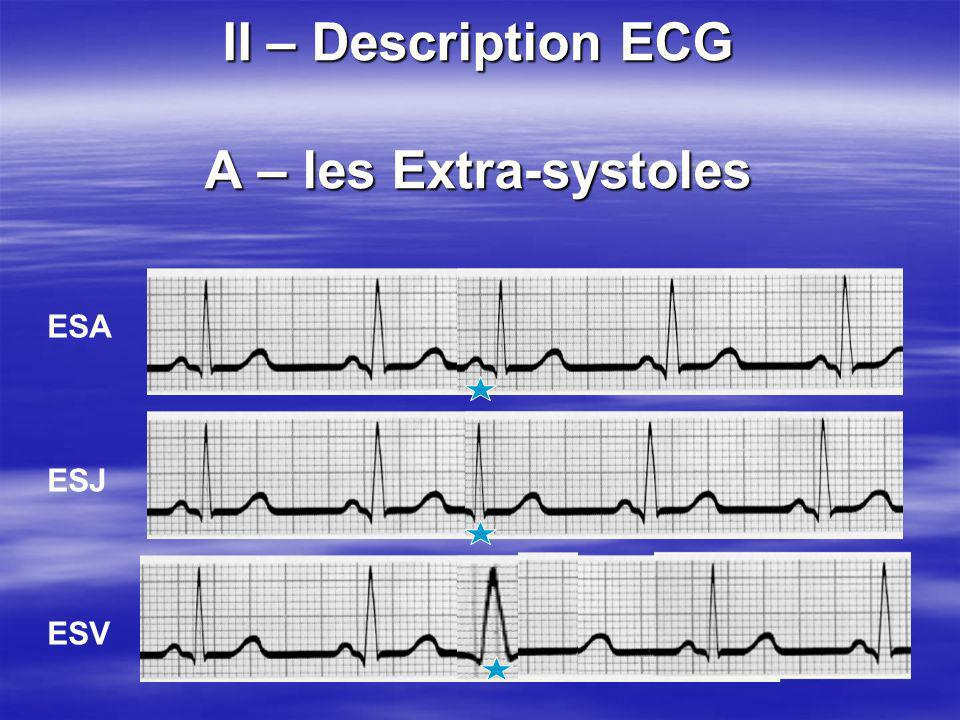 II – Description ECG A – les Extra-systoles ESA ESJ ESV