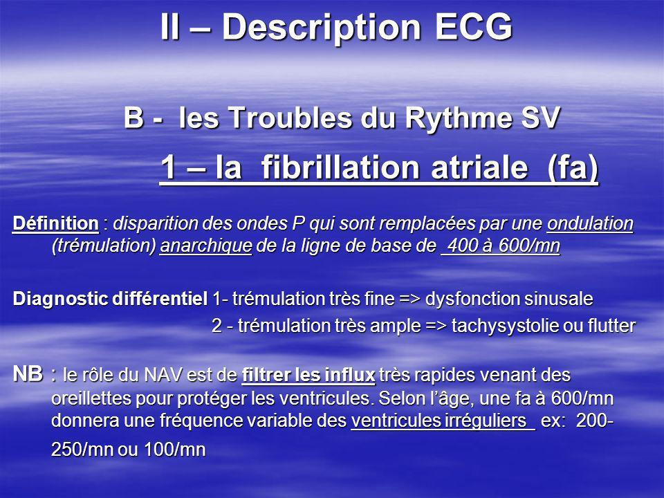 II – Description ECG B - les Troubles du Rythme SV 1 – la fibrillation atriale (fa) 1 – la fibrillation atriale (fa) Définition : disparition des onde