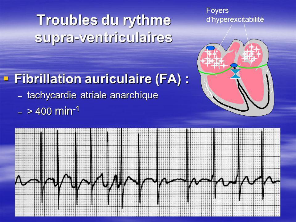 Troubles du rythme supra-ventriculaires Fibrillation auriculaire (FA) : Fibrillation auriculaire (FA) : – tachycardie atriale anarchique – > 400 min -