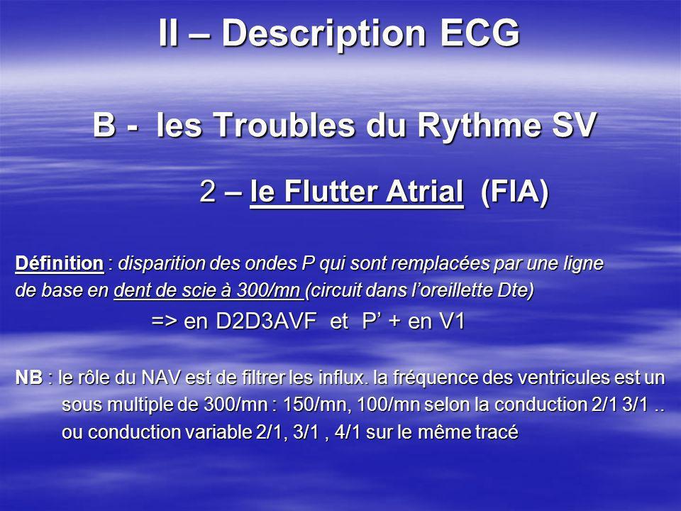 II – Description ECG B - les Troubles du Rythme SV 2 – le Flutter Atrial (FlA) 2 – le Flutter Atrial (FlA) Définition : disparition des ondes P qui so
