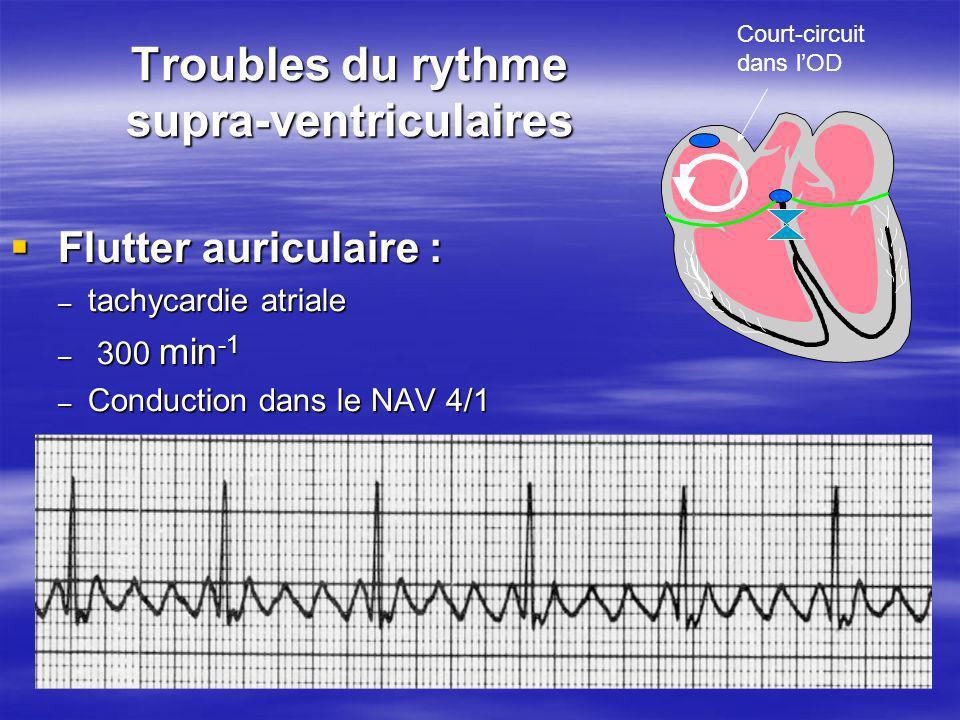 Troubles du rythme supra-ventriculaires Flutter auriculaire : Flutter auriculaire : – tachycardie atriale – 300 min -1 – Conduction dans le NAV 4/1 Co