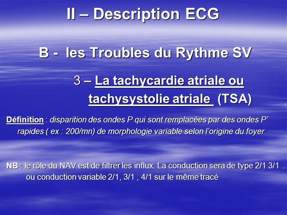 II – Description ECG B - les Troubles du Rythme SV 3 – La tachycardie atriale ou 3 – La tachycardie atriale ou tachysystolie atriale (TSA) tachysystol