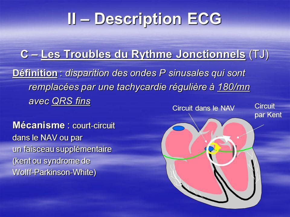 II – Description ECG C – Les Troubles du Rythme Jonctionnels (TJ) II – Description ECG C – Les Troubles du Rythme Jonctionnels (TJ) Définition : dispa