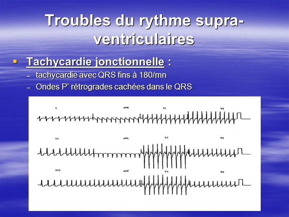 Troubles du rythme supra- ventriculaires Tachycardie jonctionnelle : Tachycardie jonctionnelle : – tachycardie avec QRS fins à 180/mn – Ondes P rétrog