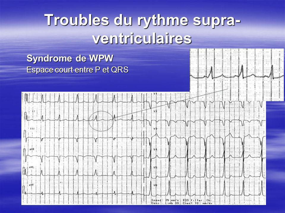 Troubles du rythme supra- ventriculaires Syndrome de WPW Espace court entre P et QRS