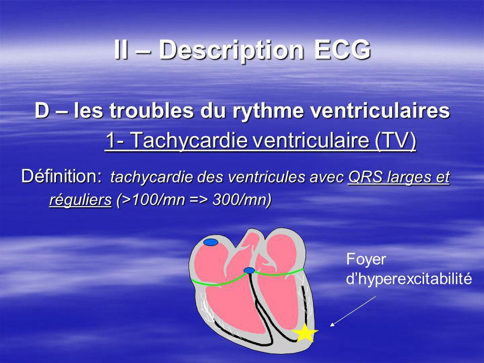 II – Description ECG D – les troubles du rythme ventriculaires 1- Tachycardie ventriculaire (TV) Définition: tachycardie des ventricules avec QRS larg