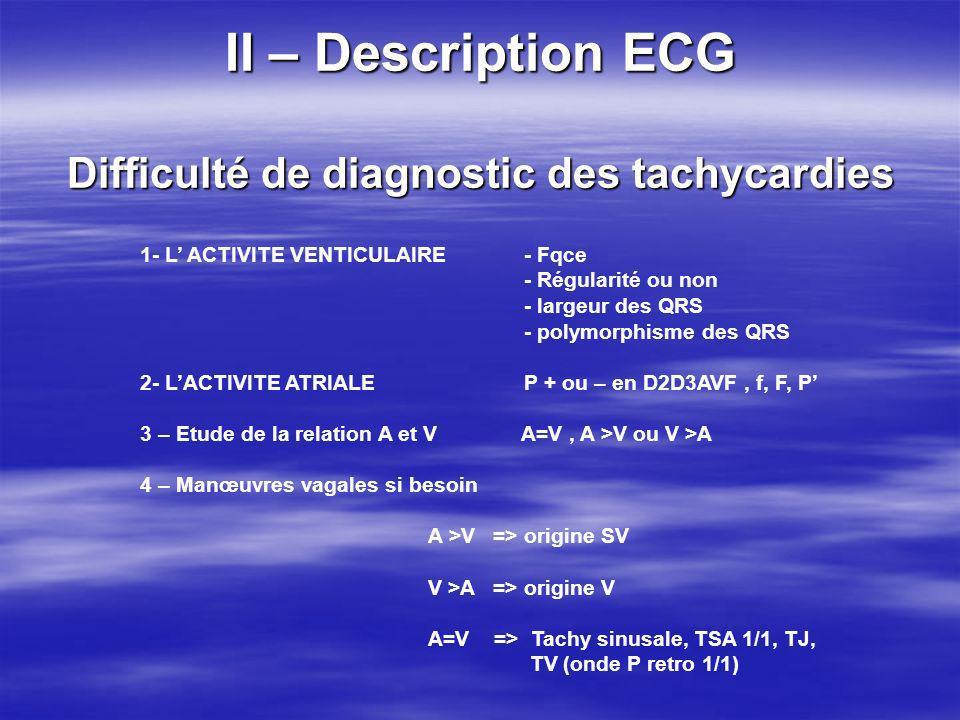 II – Description ECG Difficulté de diagnostic des tachycardies 1- L ACTIVITE VENTICULAIRE - Fqce - Régularité ou non - largeur des QRS - polymorphisme
