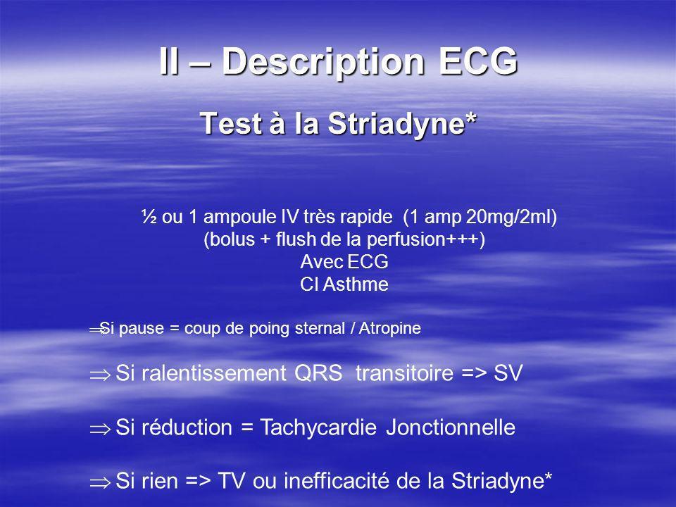 II – Description ECG Test à la Striadyne* ½ ou 1 ampoule IV très rapide (1 amp 20mg/2ml) (bolus + flush de la perfusion+++) Avec ECG CI Asthme Si paus