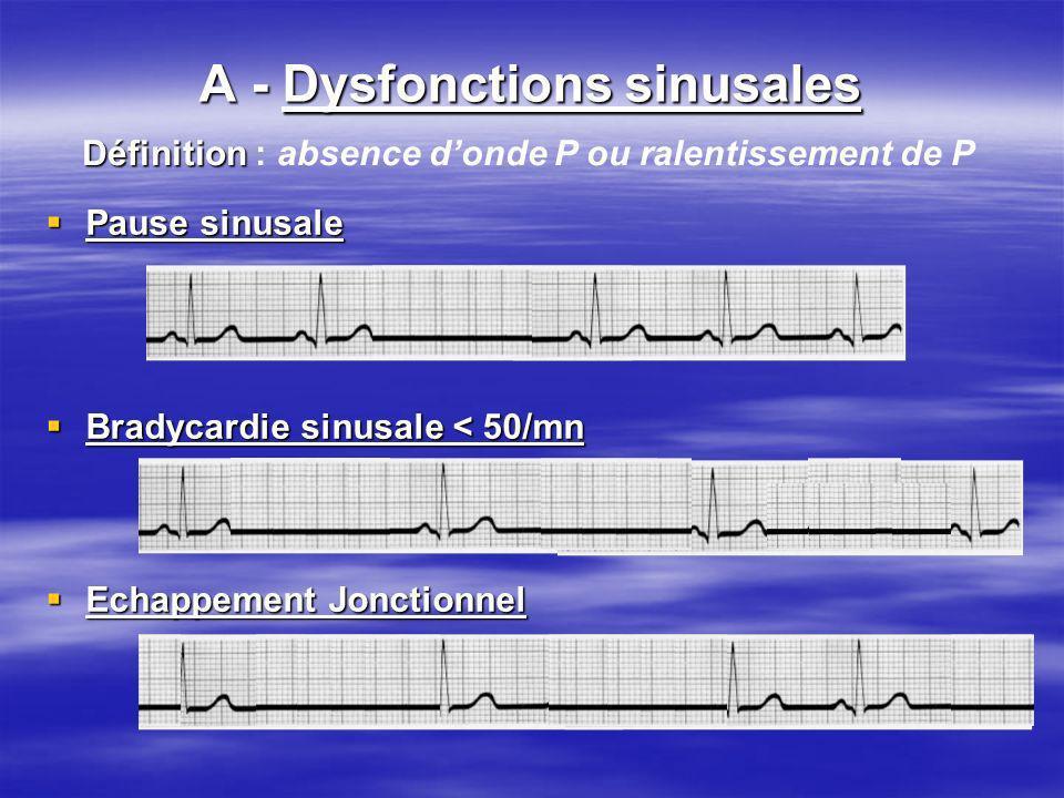 Troubles du rythme lents A - Dysfonctions sinusales Troubles du rythme lents A - Dysfonctions sinusales Pause sinusale Pause sinusale Bradycardie sinu