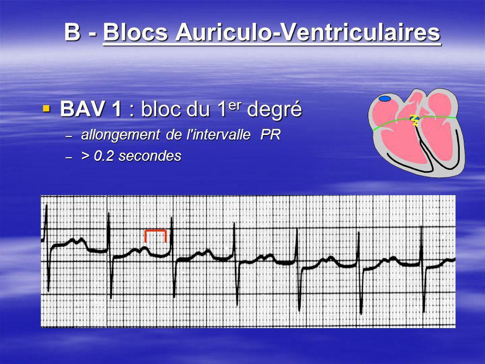 B - Blocs Auriculo-Ventriculaires BAV 1 : bloc du 1 er degré BAV 1 : bloc du 1 er degré – allongement de l'intervalle PR – > 0.2 secondes
