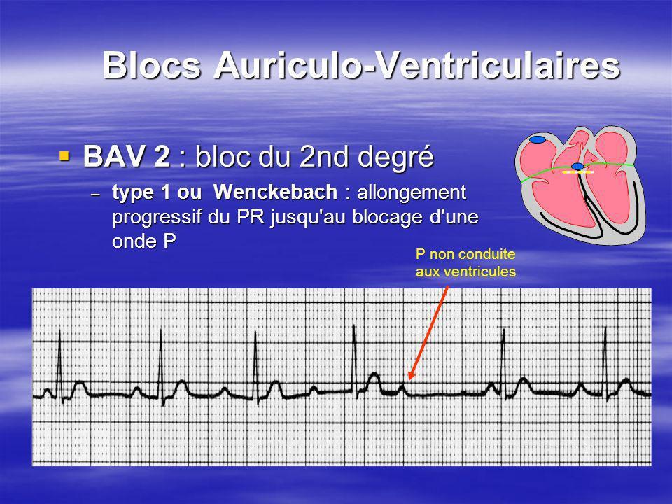 Blocs Auriculo-Ventriculaires BAV 2 : bloc du 2nd degré BAV 2 : bloc du 2nd degré – type 1 ou Wenckebach : allongement progressif du PR jusqu'au bloca