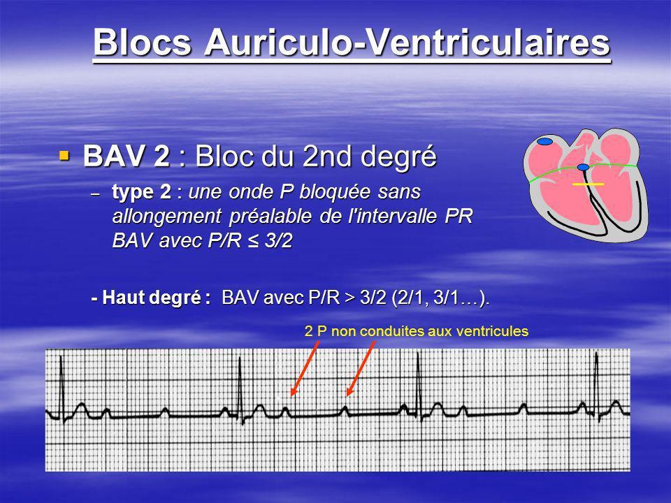 Blocs Auriculo-Ventriculaires BAV 2 : Bloc du 2nd degré BAV 2 : Bloc du 2nd degré – type 2 : une onde P bloquée sans allongement préalable de l'interv