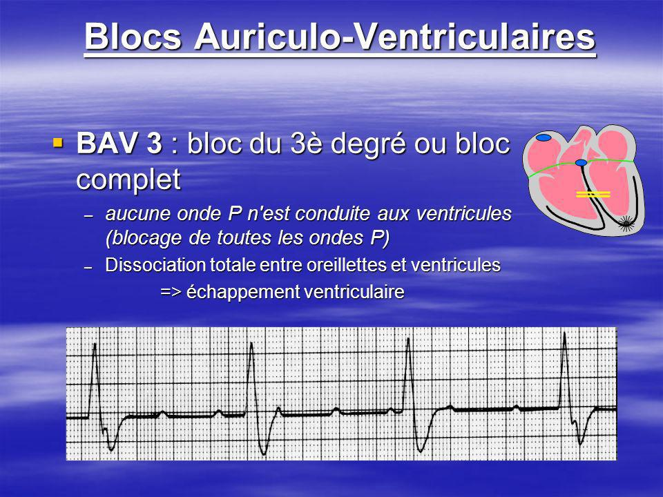 Blocs Auriculo-Ventriculaires BAV 3 : bloc du 3è degré ou bloc complet BAV 3 : bloc du 3è degré ou bloc complet – aucune onde P n'est conduite aux ven