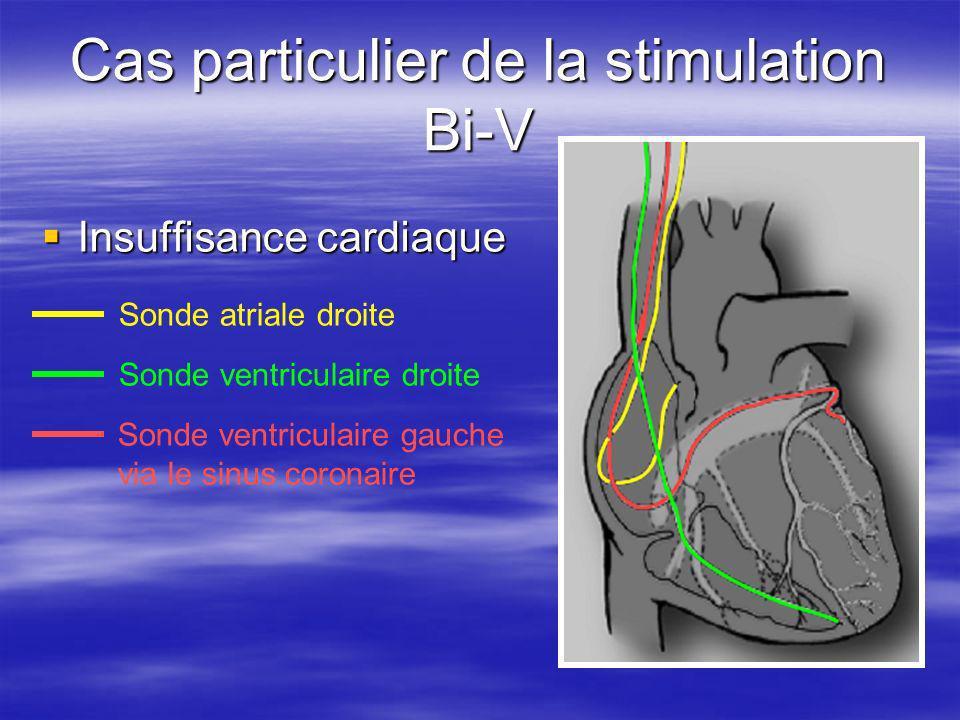 Cas particulier de la stimulation Bi-V Insuffisance cardiaque Insuffisance cardiaque Sonde atriale droite Sonde ventriculaire droite Sonde ventriculai