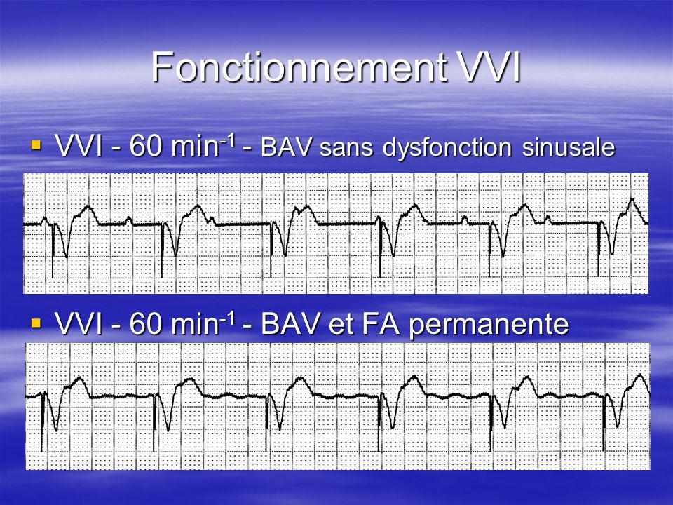 Fonctionnement VVI VVI - 60 min -1 - BAV sans dysfonction sinusale VVI - 60 min -1 - BAV sans dysfonction sinusale VVI - 60 min -1 - BAV et FA permane
