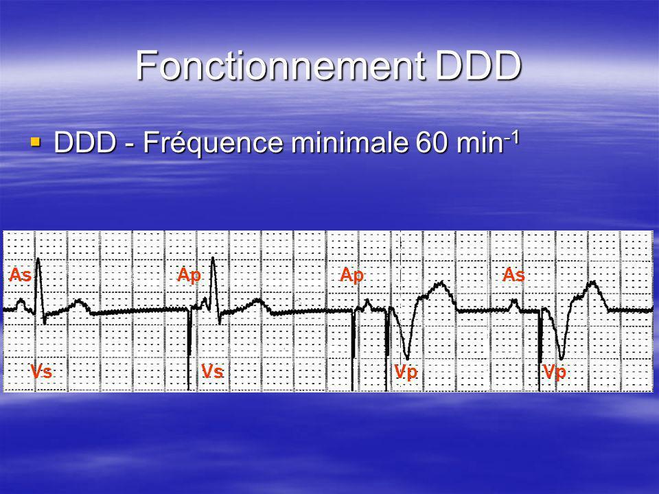 AsAp As Vs Vp Fonctionnement DDD DDD - Fréquence minimale 60 min -1 DDD - Fréquence minimale 60 min -1