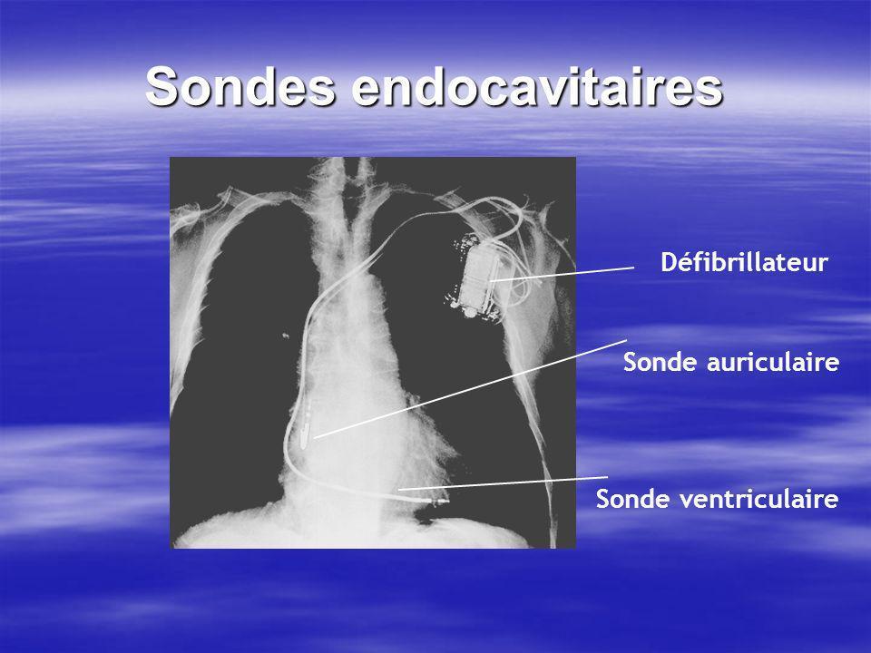 Sondes endocavitaires Défibrillateur Sonde auriculaire Sonde ventriculaire