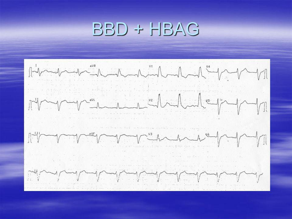 Blocs Auriculo-Ventriculaires BAV 2 : Bloc du 2nd degré BAV 2 : Bloc du 2nd degré – type 2 : une onde P bloquée sans allongement préalable de l intervalle PR BAV avec P/R 3/2 - Haut degré : BAV avec P/R > 3/2 (2/1, 3/1…).