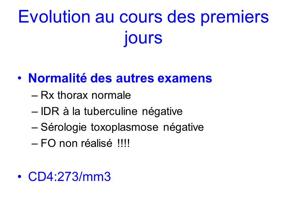Evolution au cours des premiers jours Normalité des autres examens –Rx thorax normale –IDR à la tuberculine négative –Sérologie toxoplasmose négative