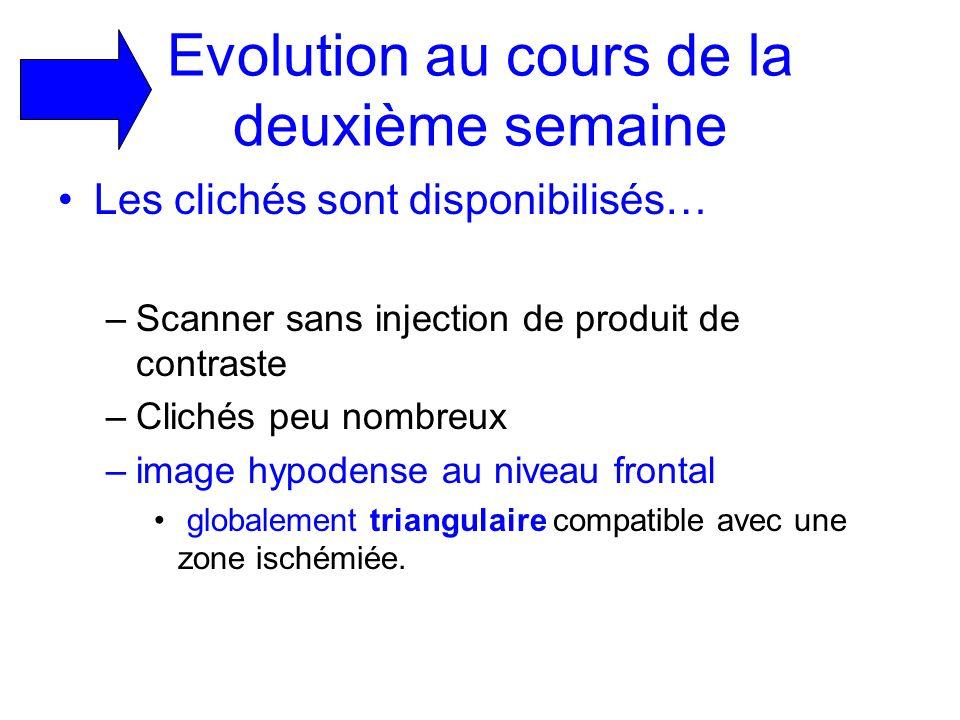 Evolution au cours de la deuxième semaine Les clichés sont disponibilisés… –Scanner sans injection de produit de contraste –Clichés peu nombreux –imag