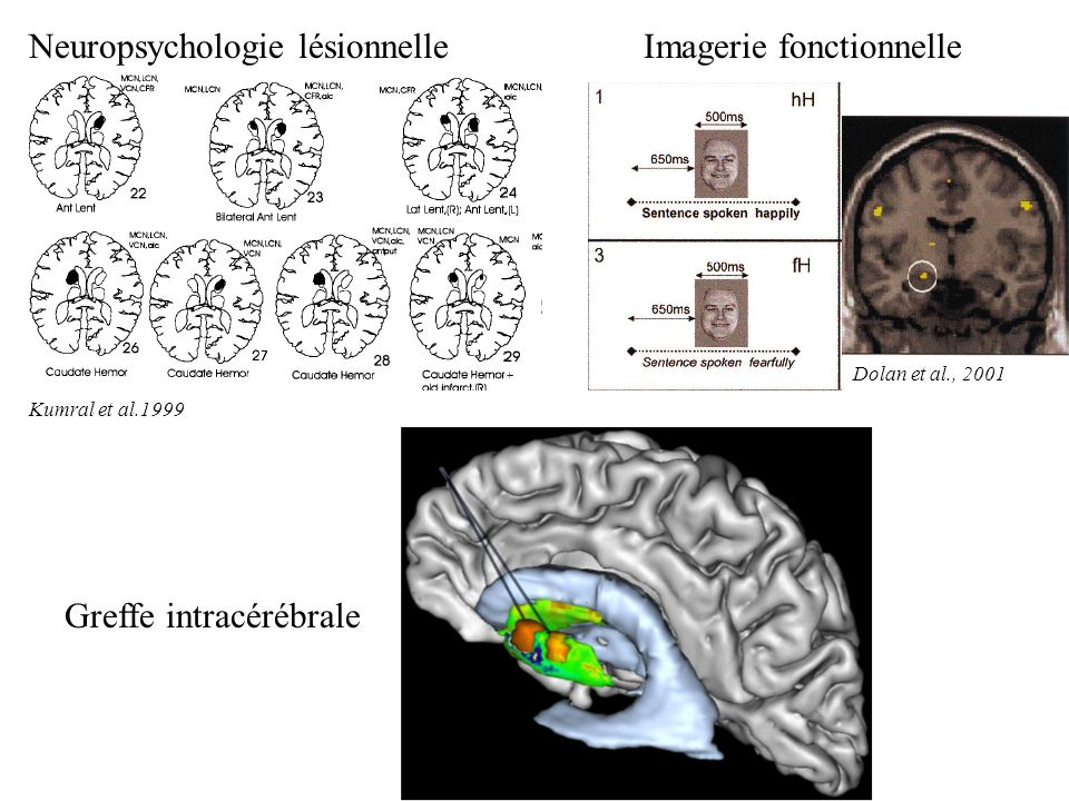 Neuropsychologie lésionnelle Kumral et al.1999 Greffe intracérébrale Bachoud-Lévi et al. 2000 Imagerie fonctionnelle Dolan et al., 2001