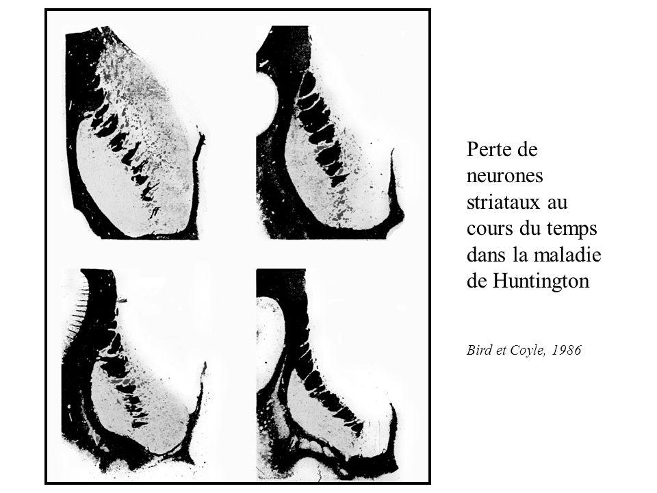 Perte de neurones striataux au cours du temps dans la maladie de Huntington Bird et Coyle, 1986