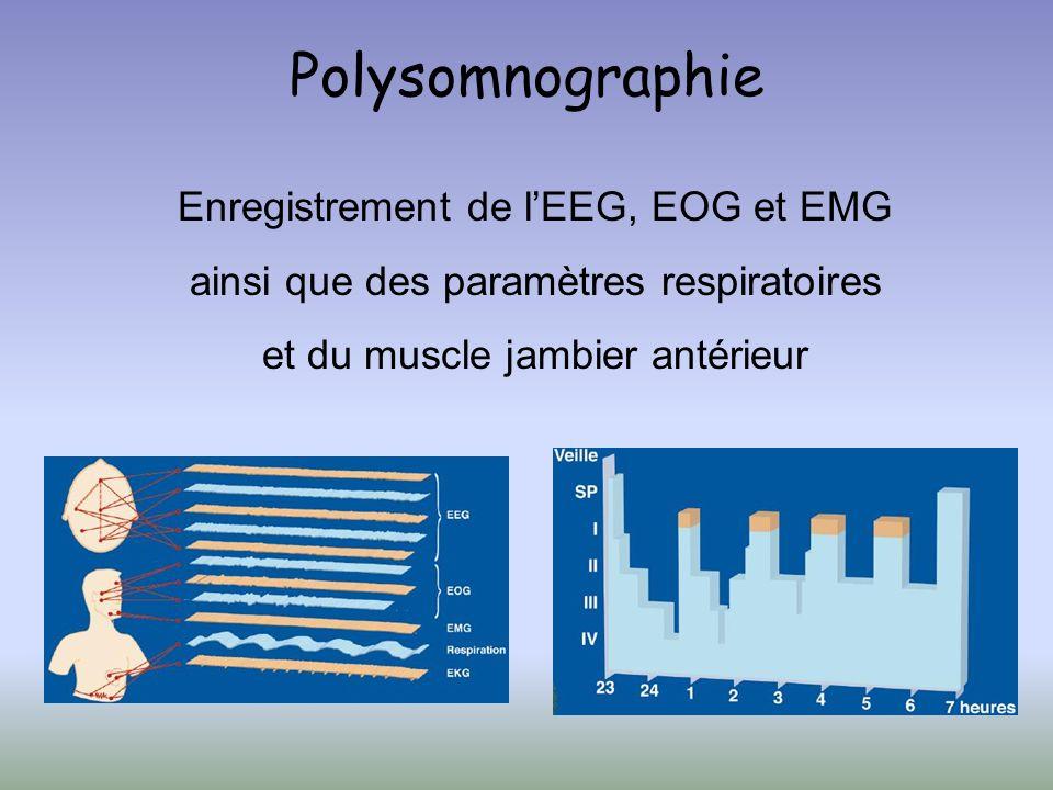Polysomnographie Enregistrement de lEEG, EOG et EMG ainsi que des paramètres respiratoires et du muscle jambier antérieur