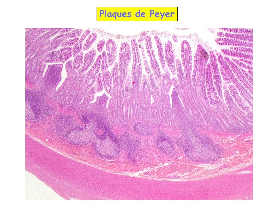 Plaques de Peyer