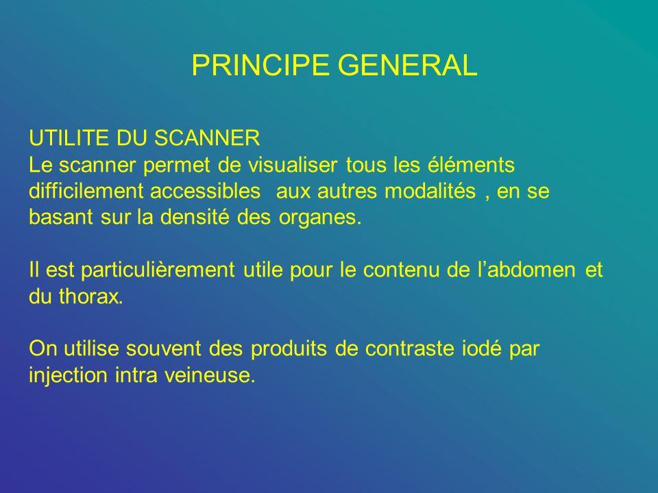 PRINCIPE GENERAL UTILITE DU SCANNER Le scanner permet de visualiser tous les éléments difficilement accessibles aux autres modalités, en se basant sur