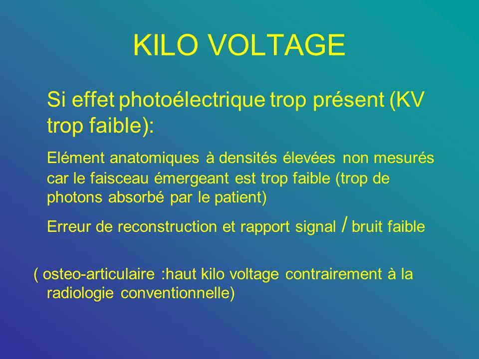 KILO VOLTAGE Si effet photoélectrique trop présent (KV trop faible): Elément anatomiques à densités élevées non mesurés car le faisceau émergeant est