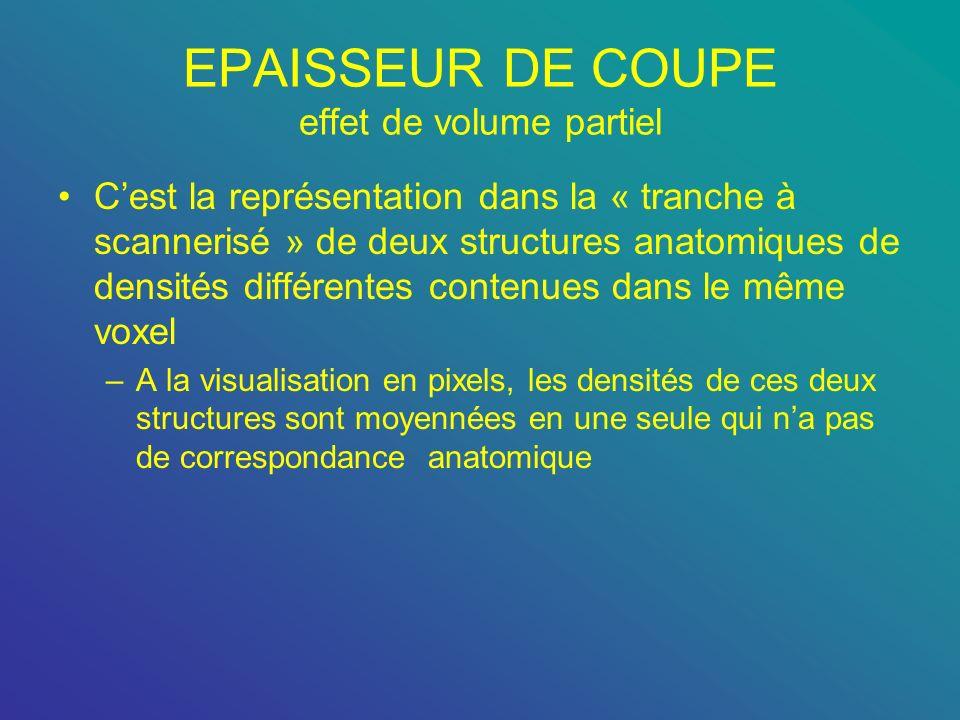 EPAISSEUR DE COUPE effet de volume partiel Cest la représentation dans la « tranche à scannerisé » de deux structures anatomiques de densités différen