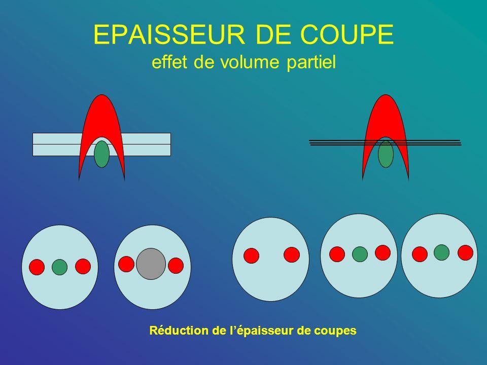 EPAISSEUR DE COUPE effet de volume partiel Réduction de lépaisseur de coupes