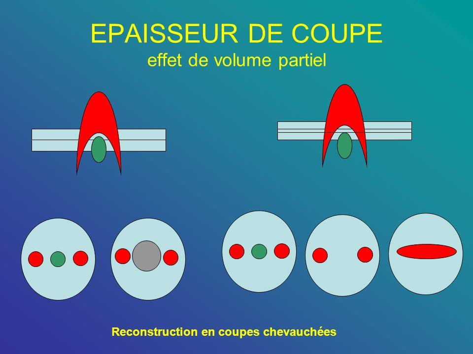 EPAISSEUR DE COUPE effet de volume partiel Reconstruction en coupes chevauchées