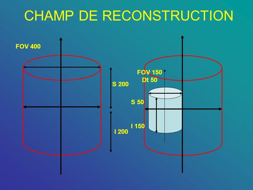 CHAMP DE RECONSTRUCTION S 200 I 200 FOV 400 S 50 I 150 FOV 150 Dt 50