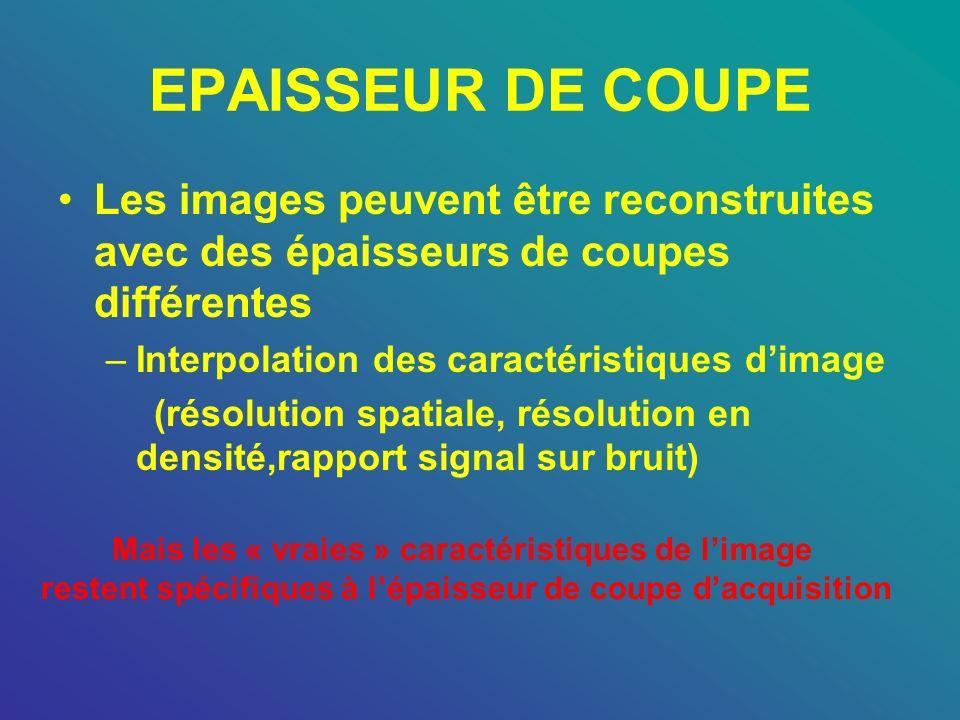 EPAISSEUR DE COUPE Les images peuvent être reconstruites avec des épaisseurs de coupes différentes –Interpolation des caractéristiques dimage (résolut