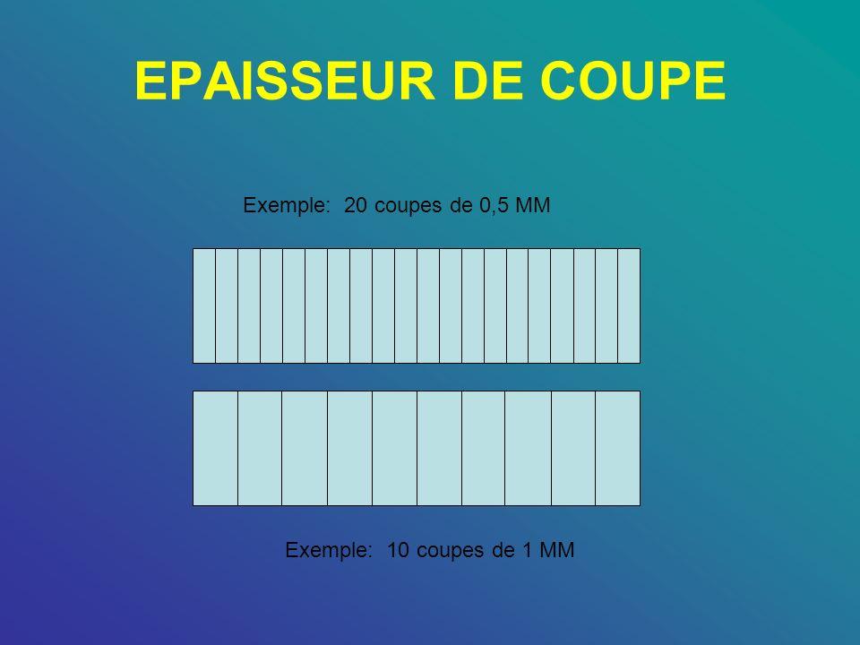 EPAISSEUR DE COUPE Exemple: 20 coupes de 0,5 MM Exemple: 10 coupes de 1 MM